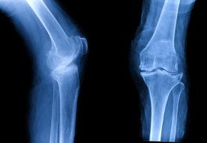 osteoarthritis pain treatment northeast knee and joint institute